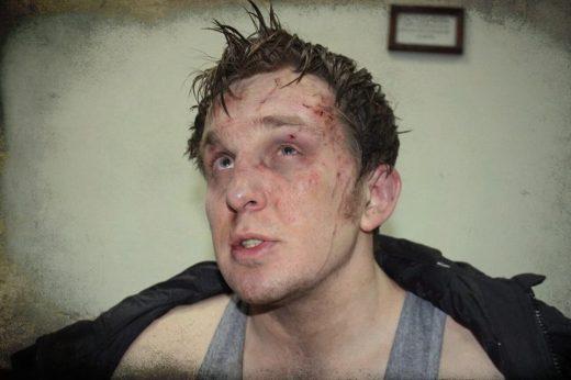 Vitaliy Dudin beaten